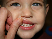 Denti-rotti